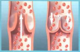 Lechenie varikoza na nogah