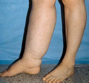 Лимфедема на ногах