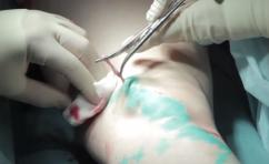 Хирургические операции  и процедуры удаления расширенных вен