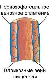 Варикоз пищевода (varikoz pishhevoda)