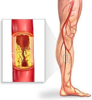Lechenie-ateroskleroza-sosudov-nizhnih-konechnostej