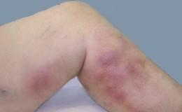 Тромбофлебит глубоких и поверхностных вен: риск и причины