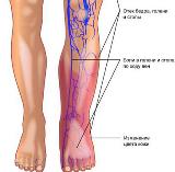 Опасность от тромбофлебита поверхностных вен