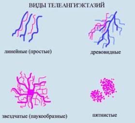 Телеангиэктазии классификация