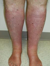 хроническая венозная недостаточность отеки ног