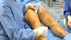 Как проходит эндовазальная лазерная коагуляция вен на ногах?