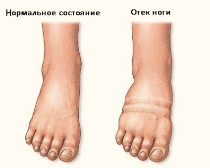 фото: нормальное состояние и состояние отека ноги