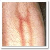 Фото: симптомы тромбофлебита поверхностных вен