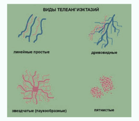 Vidy teleangijektazij - retikuljarnyj varikoz