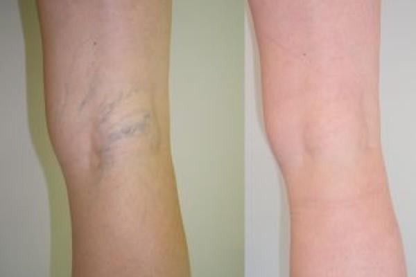 Фото ноги после склеротерапии