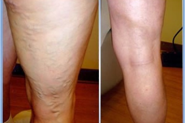 Фото:  Склеротерапия вен до и после операции