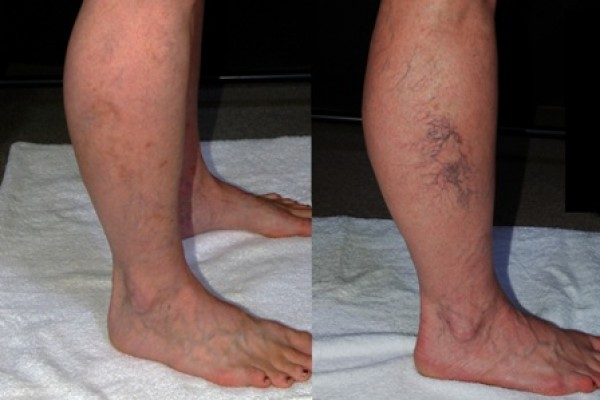 Фото:  Склеротерапия вен до и после процедуры