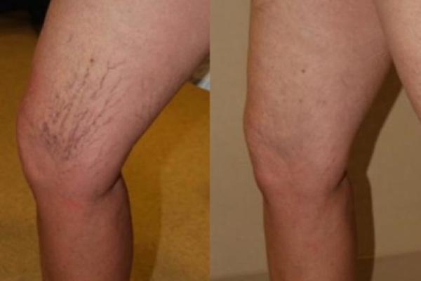 Фото  склеротерапия вен  ноги до и после