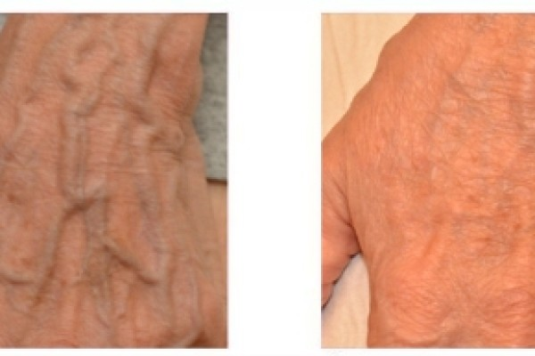 Склеротерапия вен  руки до и после