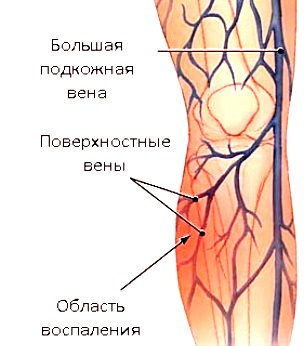 Фото проявления тромбофлебита поверхностных вен ног