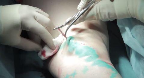 Хирургические операции при лечении вен